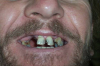 Platinum Dental-Before #1