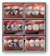 DAS Dental Group before and after