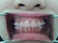 Harmony Dental Studio, Braces