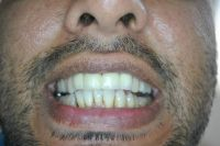 Harmony Dental Studio, Happy Smile on patient