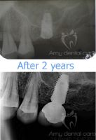 Amy Dental Care, Before and After, Implants