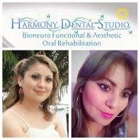Harmony Dental Studio, Bichectomy
