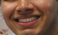 Harmony Dental Studio, Bright smile