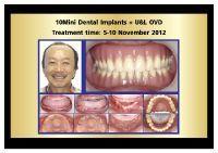BFC Dental Srinakarin