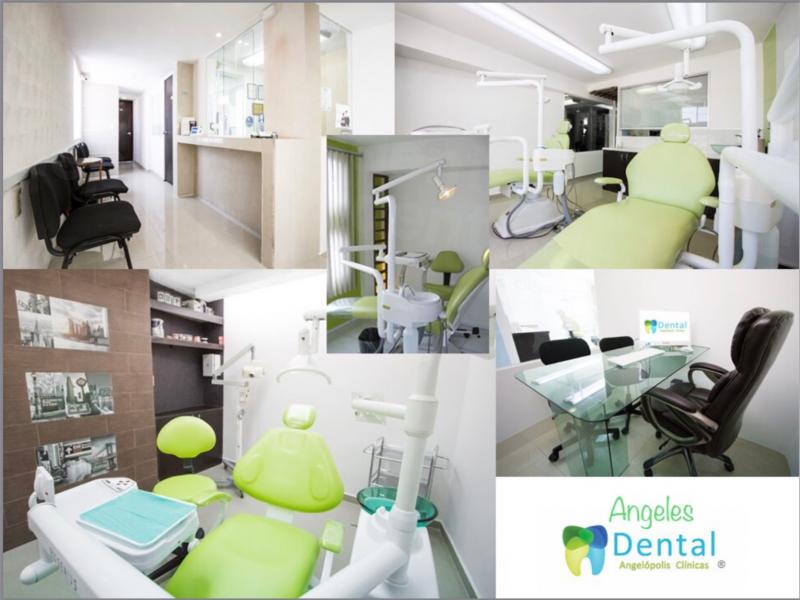Dental Angelopolis - Palmas