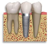 $1,600 Dental Implant
