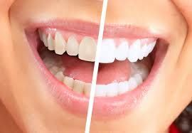 25% discount in Whitening - cash only