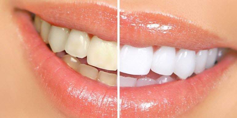 Amy Dental Care 20% Discount for Teeth Whitening with Beaming White (USA)