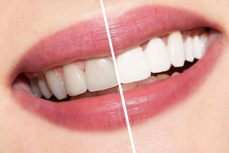 10% Discount off Teeth Whitening in Bangkok