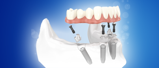 250$ Off All-On-4 implant