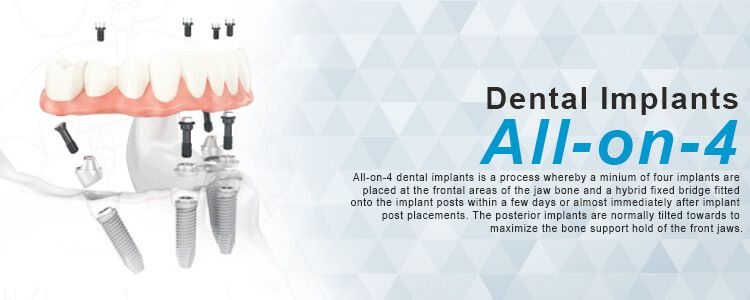 All-on-4 with All Acrylic bridge at Phuket Dental Signature