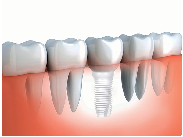 Metal Free Dental Implants Package at Modena Dental Clinic