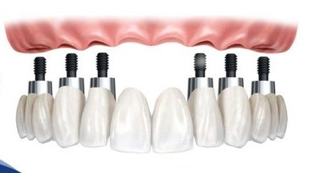 Zirconia Bridge Package at Imperial Dental Specialist Centre