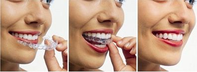 Invisalign Package at Imperial Dental Specialist Centre