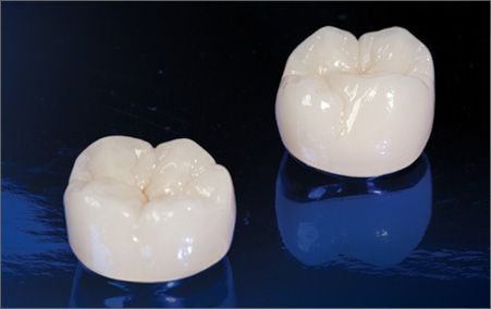 Precious metal fused to porcelain crowns are $180USD