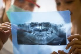 Free Digital X-Rays