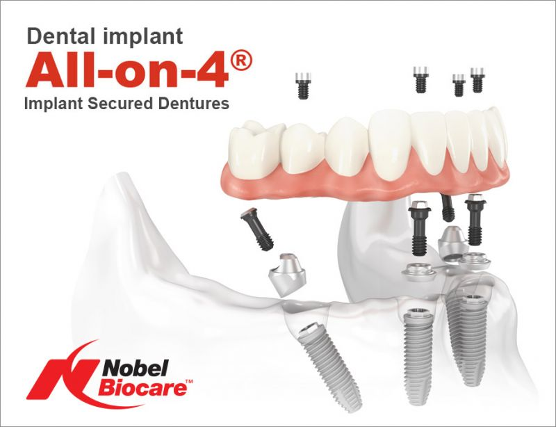 All-on-4 packages with Nobel Biocare Nobel Active at Phuket Dental Signature