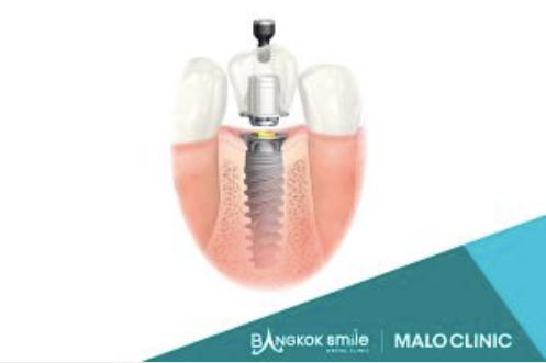 Single Implant Osstem Hiossen (with crown on implant) at Bangkok Smile Malo Clinic Headquarters (Soi Sukhumvit 5)