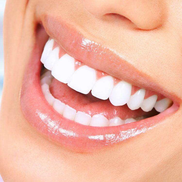 Get Veneer Promotion and Package at Bangkok Smile Malo Clinic Headquarters (Soi Sukhumvit 5)