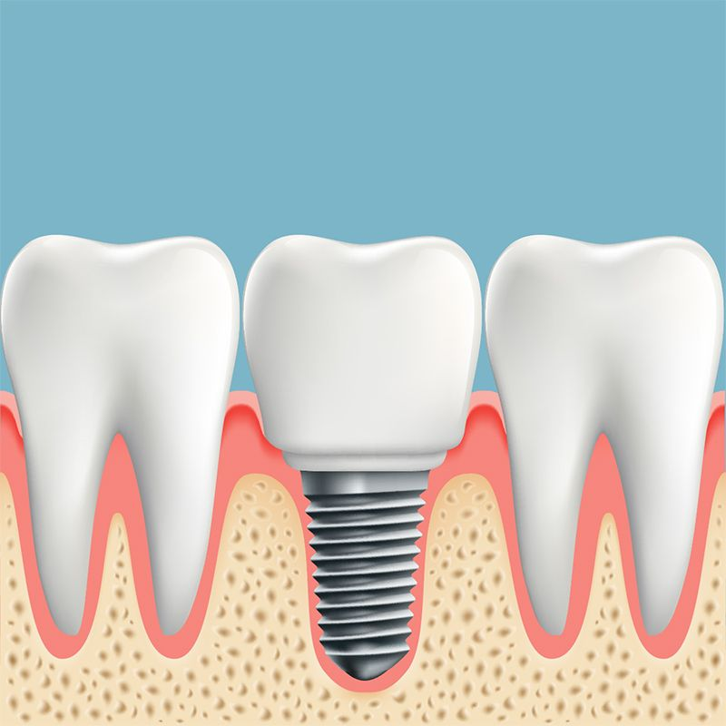 Exclusive price on Dental implants