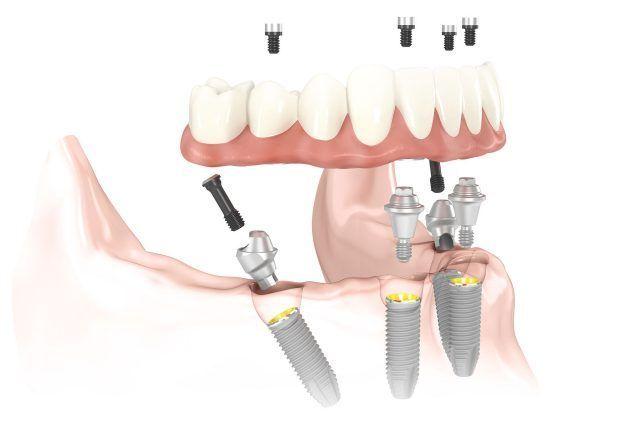 All on 4 promotion at I-Dent Dental Implant Center