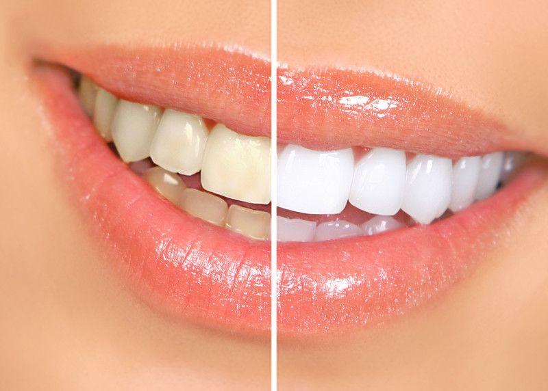 Zoom Teeth Whitening Couple Promotion