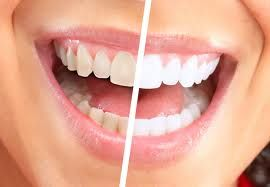Free teeth cleaning with whitening