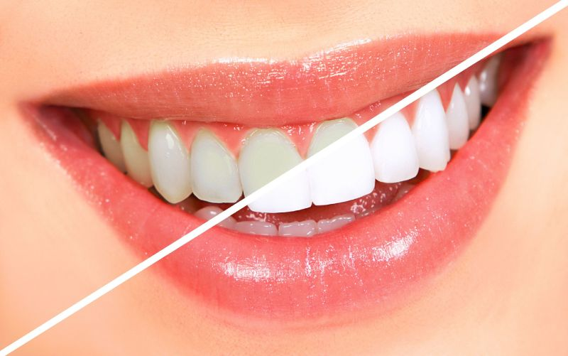 Free laser teeth whitening