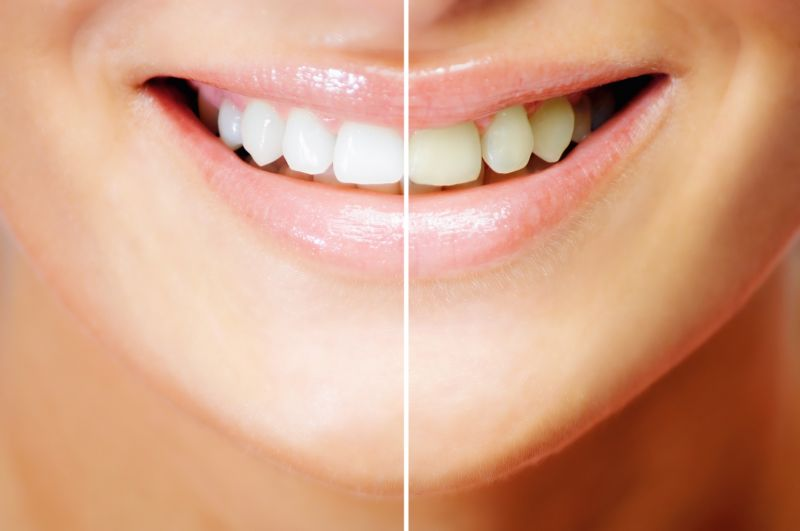 Teeth whitening treatment / Home procedure