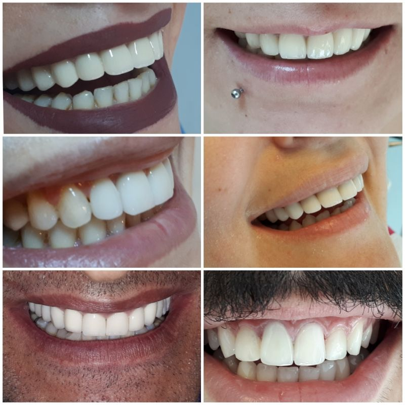 Free teeth whitening for your partner!