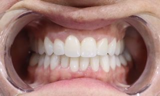 FULL MOUTH RESTORATION - Zirconia