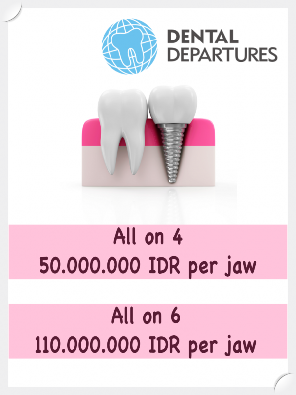 Special prices for All on 4/All on 6 at Rejuvie Dental Clinic Sanur