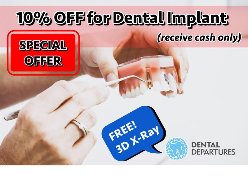 10% OFF for Dental Implant + Free 3D X-Ray