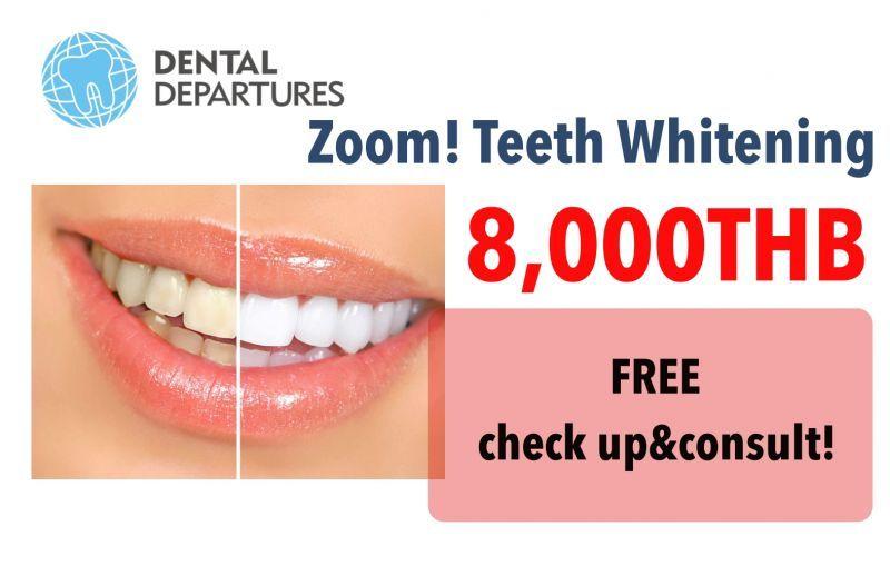 Advance Zoom! Teeth Whitening at 8,000 baht