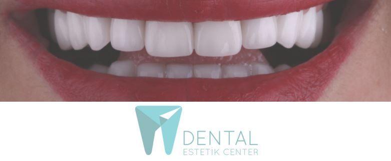 Dental Estetik Center Veneer Packages