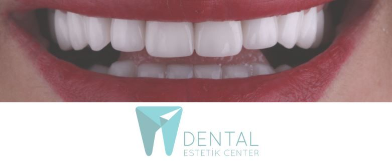 Dental Estetik Center Implant Packages