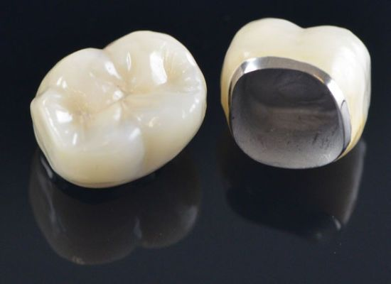 Full mouth restoration / Porcelain Fuse to Metal Crown
