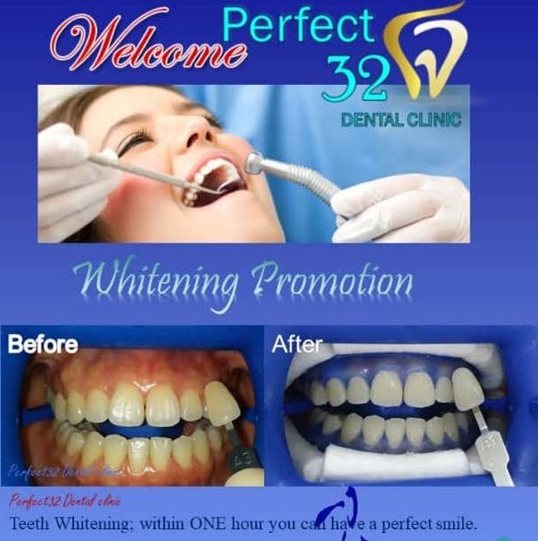 Teeth Whitening with LED light - (W Gel)