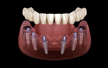 ALL ON SIX with Straumann Implants
