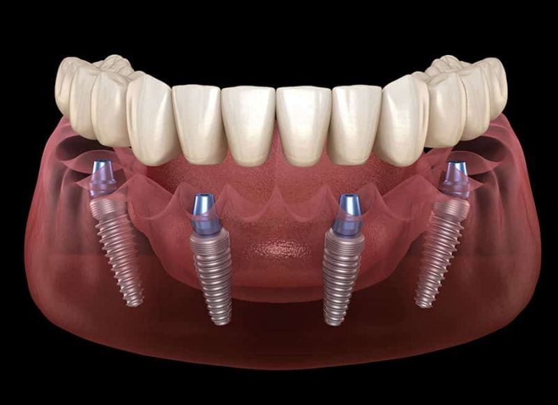 ALL ON FOUR with Straumann Implants