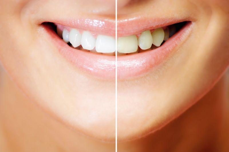 Teeth Whitening 2x1