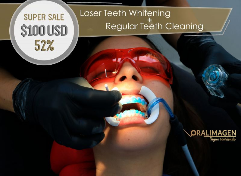 Oralimagen Laser Teeth Whitening + Teeth Cleaning!
