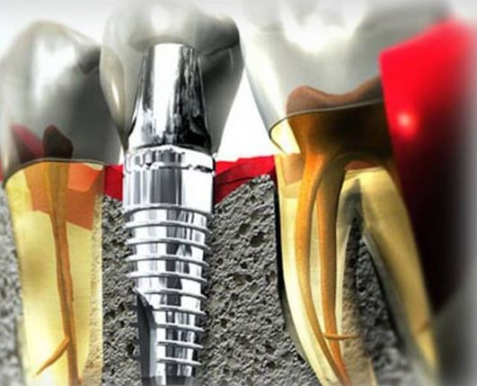 Restoration with 4 or 6 implants - Dental Clinic Cancun