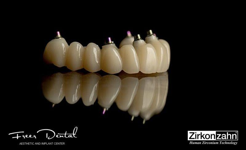 All-on-4/6 Full Zirconia Prettau Fixed Full-Arch Prosthesis
