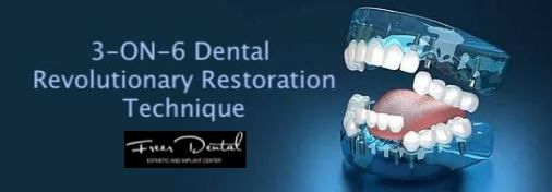 Huge package for 3-ON-6 - Freer Dental