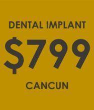 Dental implant Promotion - Dental Clinic Cancun
