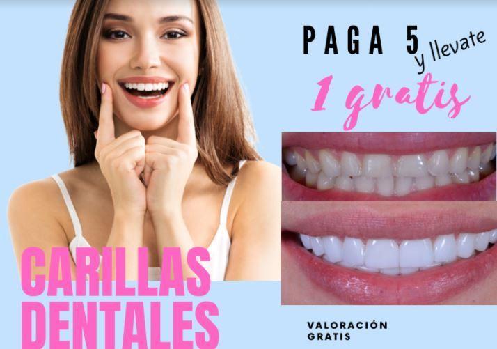 Dental Veneers - Medica Cristal
