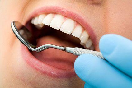 All on Dental 65 Euro off your Porcelain Veneer!