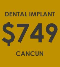 Dental Implants - Dental Clinic Cancun