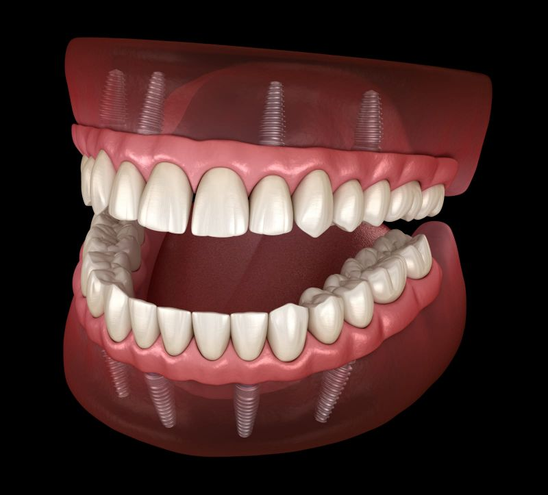 """Because two is better than one """"All-on-4"""" top and bottom jaw for only $14,999.00"""